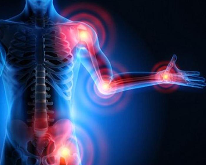 Artrosi. Terapia e Sintomatologia